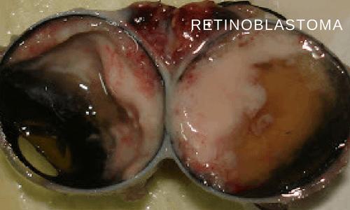 Retinoblastoma – effect of digital editing